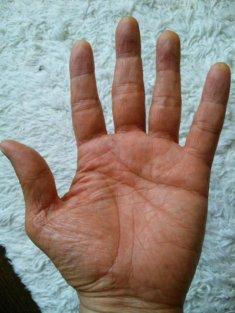 Hand1_2